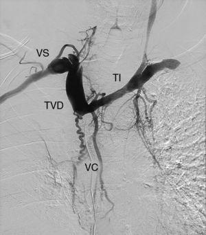 Angiografía. TI: tronco innominado; TVD: tronco venoso derecho; VC: vasos colaterales; VS: vena subclavia.