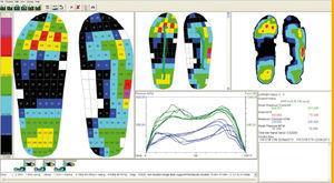 Estudio de las presiones plantares mediante el sistema Novel Pedar X® (Novel GmbH, Múnich, Alemania), que se realiza al paciente para evaluar la efectividad de las descargas de fieltro