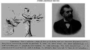 Etiènne Lancereaux (1829-1910) introduced the concept of pancreatic diabetes (1877).