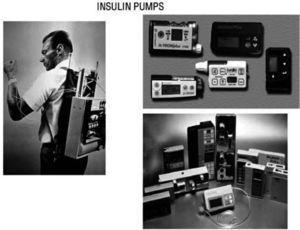 In 1974 Gérard Slama designed the first prototype for an intravenous insulin pump (left). First CSII system was used by John Pickup and Harry Keen, in 1978. Later on, pumps have been reduced in size and developed programs for multiple basal rates of insulin infusion and premeal bolus (right).