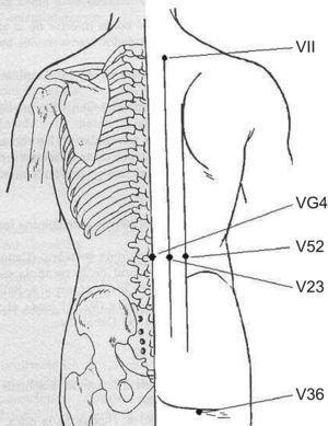 Puntos acupunturales situados en el tronco utilizados en el tratamiento del dolor poslaminectomía.
