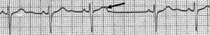 Extrasístole auricular bloqueado.