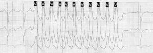 Taquicardia ventricular no sostenida.