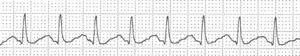Taquicardia regular de QRS estrecho.
