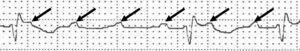 Taquicardia auricular tras aplicación de las maniobras vagales: se observa como la taquicardia «abre» desenmascarando las ondas P.