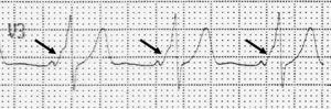 Anomalía electrocardiográfica de WPW. Se observa un PR corto y un ensanchamiento del QRS por la presencia de un empastamiento inicial, la onda delta (flecha). Ver explicación en texto.