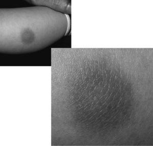 Mastocitoma solitario.