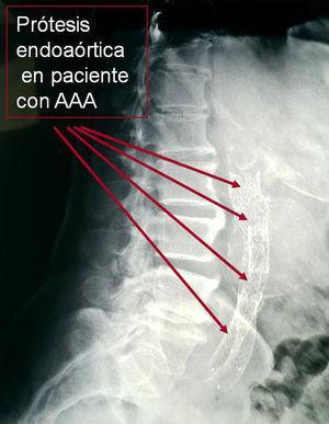 Imagen radiográfica de prótesis endoaórtica en paciente con aneurisma de aorta abdominal.