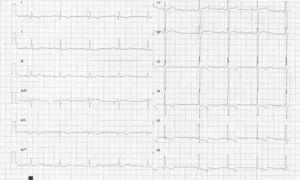 Electrocardiograma característico de hipertrofia de ventrículo izquierdo significativa con patrón de sobrecarga sistólica.
