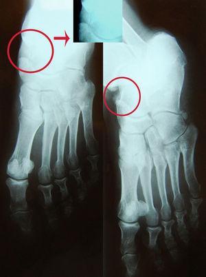 Radiografía simple inicial del pie. Círculos rojos: imagen sospechosa de fractura que corresponde a hueso accesorio os tibiale. Flecha: ampliación del hueso os tibiale.