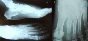 Radiografía simple de pie a las 6 y 9 semanas. A: Círculo rojo: Fractura de diáfisis de segundo metatarsiano en dos proyecciones. B: Imagen de callo de fractura.