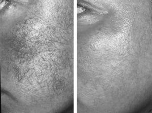Telangiectasias en paciente antes y después del tratamiento con láser.