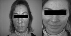 Obtenidas de una paciente con rosácea. A la izquierda se aprecia el aspecto previo al tratamiento. Se puede ver la mejoría de las telangiectasias y el eritema.
