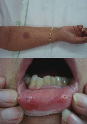 Placas en mucosa oral y placa cutánea ovalada eritemato-violácea y edematosa en antebrazo características de eritema fijo medicamentoso mucocutáneo tras la toma de sulfamidas.