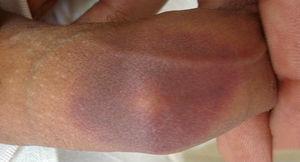 Mácula hiperpigmentada residual en dorso de pene, en paciente con eritema fijo medicamentoso secundario a la toma de amoxicilina.