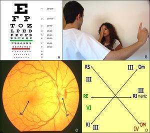 Exploración de pares craneales: óptico (II) y oculomotores (III, IV, VI): A) Tabla de Snellen. B) Campimetría por confrontación. C) Fondo de ojo. D) Exploración de la motilidad ocular extrínseca. M: mácula, Om: oblicuo menor, OM: oblicuo mayor; P: papila; RE: recto externo; RI: rector inferior; RS: recto superior.