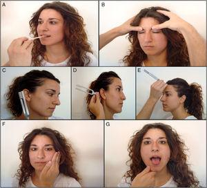 Exploración de pares craneales: A) Trigémino (V): nervio mandibular. B) Facial (VII): prueba del orbicular de los párpados. C y D) Vestibulococlear (VIII): prueba de Rinne. E) Vestibulococlear (VIII): prueba de Weber. F) Espinal (XI). G) Hipogloso (XII).