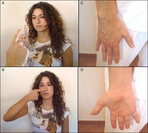 Exploración de la coordinación y cerebelo. A) Prueba dedo-nariz-dedo. B) Prueba índice-nariz. C y D) Prueba de movimientos alternantes rápidos.