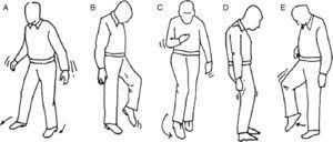 Exploración de la marcha. A) Marcha cerebelosa. B) Marcha sensitiva-tabética. C) Marcha espástica o «en segador». D) Marcha parkinsoniana. E) Marcha en estepaje.