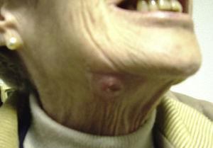 Absceso submandibular con el que debutó la paciente. (M. Martínez Morentin, J.M. Echeveste).