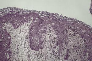 Células de Paget en epidermis. Presentan citoplasma claro y nucléolo prominente.