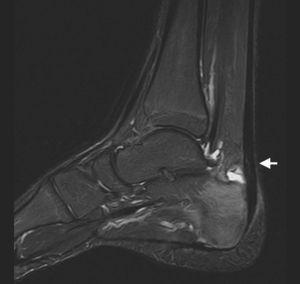 RM de tobillo, secuencia STIR (supresión grasa) en plano sagital. Se aprecia bursitis retroaquílea, engrosamiento del tendón de Aquiles con rotura parcial (flecha) y edema óseo en el calcáneo.