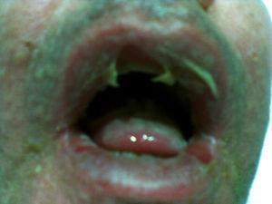 Lesiones ampollosas en mucosa oral.