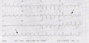 ECG. Ritmo sinusal básico con alternancia eléctrica (flechas) más visible en V4-5, bloqueo completo de rama izquierda.