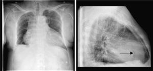 Radiografía de tórax. Cardiomegalia global con imagen «en garrafa». En proyección lateral, imagen de radiolucencia (flecha).