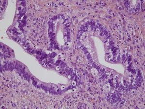 En la imagen anatomopatológica en hematoxilina-eosina, se observan mitosis explosivas.