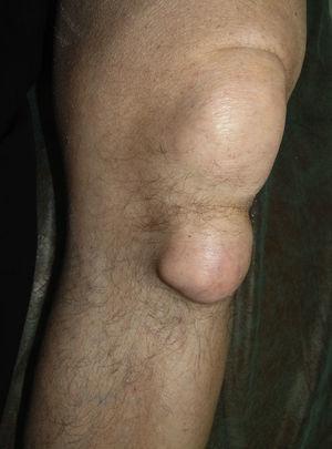 Tofo de gran tamaño en rodilla izquierda.