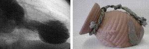A la derecha, antiguo recipiente con que los pescadores japoneses capturaban los pulpos (en japonés tako significa «pulpo» y tsubo, «recipiente»). A la izquierda, imagen sistólica del ventrículo izquierdo en la ventriculografía, en la que se observa discinesia anteroapical con hipercinesia basal, característica del síndrome de Tako-Tsubo.