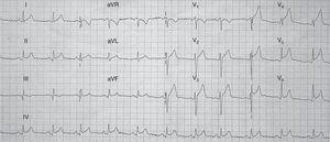 El electrocardiograma (ECG) inicial puede ser similar al del SCA con elevación del segmento ST en precordiales, ondas T negativas en precordiales y onda Q, siendo rara la imagen especular en cara inferior.