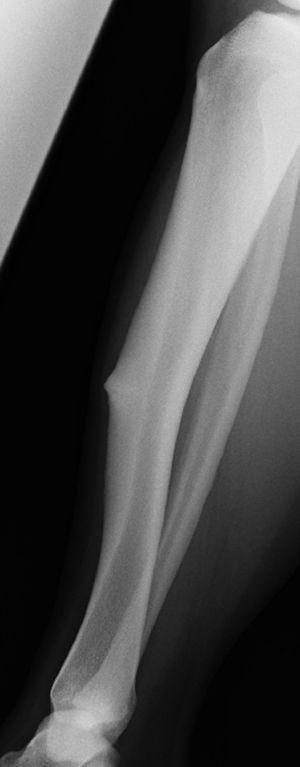 En la exploración física del paciente se evidenció deformidad en la pierna afectada y tumoración sólida en el tercio medio de la pierna contralateral correspondiente a un engrosamiento de la cortical anterior de la tibia, consecuencia de una fatiga crónica.