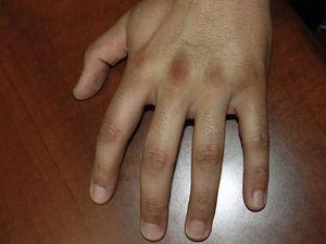 Placas de color marrón oscuro y aspecto aterciopelado sobre tercera, cuarta y quinta articulaciones metacarpofalángicas e interfalángicas de la mano derecha.
