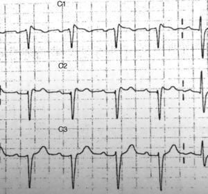 Ritmo sinusal a una frecuencia de 94 latidos por minuto. Bloqueo incompleto de rama derecha. Elevación submilimétrica del ST con morfología «en silla de montar» en V1-V2 compatible con patrón de Brugada tipo ii.