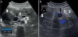 Dilatación del colédoco y el conducto de Wirsung del caso 3 (A) e imagen hipoecogénica en cabeza de páncreas en el caso 4 (B), señaladas por las flechas. Estructuras de referencia: hígado (1), vesícula biliar (2), páncreas (3), aorta (4) y arteria mesénterica superior (5).