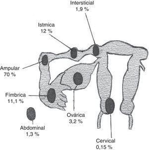 Localización anatómica y distribución porcentual del embarazo ectópico.
