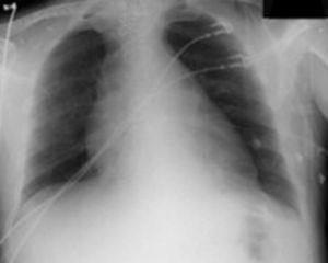 Radiografía de tórax con ensanchamiento mediastínico, signo radiológico clásico de la disección aórtica.