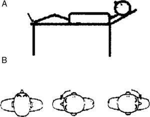 Maniobra de Pagnini-McClure o Roll Test. Paciente en posición supina con la cabeza inclinada 30° hacia arriba. Se gira la cabeza hacia el lado izquierdo para explorar el canal semicircular horizontal izquierdo, y luego a la derecha para explorar el canal semicircular horizontal derecho.