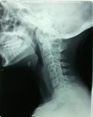Radiografía lateral de columna cervical.