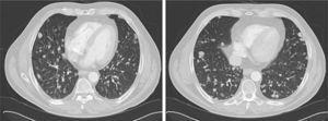 Cortes axiales de TC mostrando imágenes macronodulares bilaterales compatibles con metástasis pulmonares.