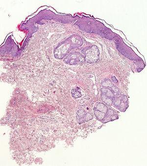 Glándulas sebáceas con ausencia de folículo piloso conectadas directamente con la epidermis sin infiltrado inflamatorio acompañante.