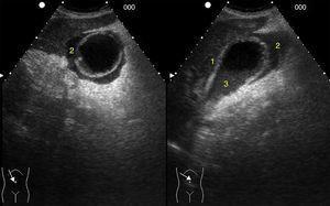 Corte longitudinal y transversal en el hipocondrio derecho. Colecistitis aguda: engrosamiento de la pared (1), colecciones líquidas perivesiculares (2) y material ecogénico intravesicular (3).