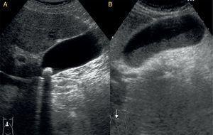 Corte longitudinal en el hipocondrio derecho. A: colelitiasis, imagen intravesicular hiperecogénica con sombra posterior a nivel del cuello. B: barro biliar, ocupación de la porción más declive de la vesícula con material ecogénico y con nivel horizontal.