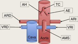 Esquema de los grandes vasos abdominales. TC: tronco celíaco, la primera rama de la aorta abdominal, que al poco de su nacimiento se bifurca en la arteria hepática (AH) que discurre hacia la derecha del paciente, y la arteria esplénica (AE), que se dirige a la izquierda, en dirección al bazo. La segunda rama de la aorta abdominal es la arteria mesentérica superior (AMS), que al poco de nacer se dirige caudalmente paralela a la aorta, formando un espacio entra ellas, la llamada pinza aorto-mesentérica, por donde discurre transversalmente la vena renal izquierda (VRI) en su recorrido hacia la cava inferior. Las arterias renales nacen de la cara lateral de la aorta; la arteria renal derecha (ARD) se dirige hacia el riñón derecho pasando por detrás de la cava, mientras que la arteria renal izquierda (ARI) se dirige al riñón izquierdo directamente. La VRI aboca la cara lateral de la vena cava inferior, previamente ha pasado por la pinza aorto-mesentérica en su camino procedente del riñón izquierdo; y la vena renal derecha (VRD) viene del riñón correspondiente abocando en la cara lateral derecha de la cava directamente.