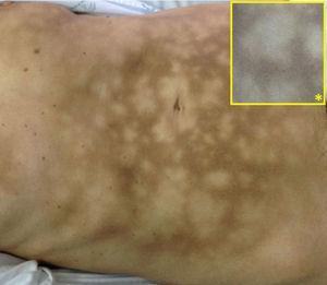 Manchas hiperpigmentadas de distribución reticular en la región abdominal, desde las crestas iliacas hasta la región submamaria bilateral. Detalle de la imagen (*).