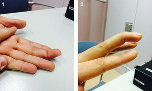Dedo en martillo. Tercer dedo de la mano izquierda.