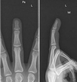 Radiografía simple, sin evidencia de fractura o arrancamiento.
