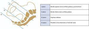 Planos de Hodge. Los planos de Hodge representan el descenso de la presentación fetal en la pelvis materna. La altura de cada uno de estos planos está definida por una referencia anatómica.